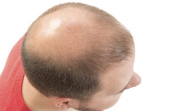Early Graying And Baldness Predict Heart Disease