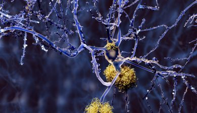 Researchers Examined Alzheimer's Disease By PET Scanner