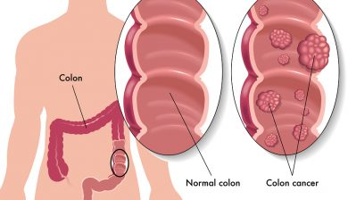 Fiber Intake Improves Survival Rates Of Colorectal Cancer