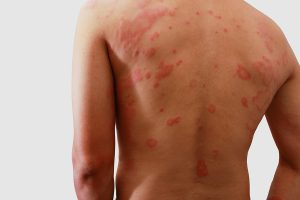 Are Your Clothes Giving You A Skin Rash?