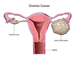 Ovarian Cancer Vaccine Worked