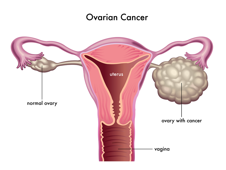 Ovarian Cancer Vaccine Worked