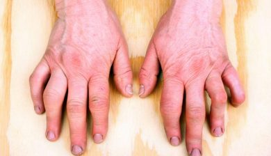 Inflammation In Rheumatoid Arthritis Patients Affects The Brain