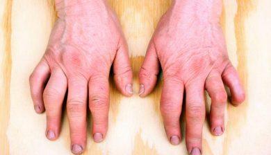 Inflammation In Rheumatoid Arthritis Patients Affects The Brain