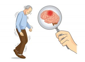 Light-Activated Drug May Treat Parkinson's Disease