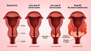 Minimally Invasive Cervical Cancer Surgery