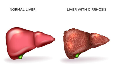 Hepatitis C Can Lead to Cirrhosis of the Liver