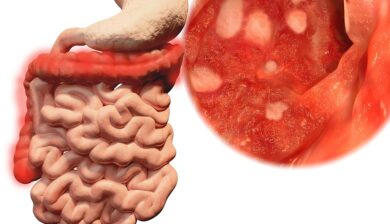 T Cells Play a Major Role in Ulcerative Colitis