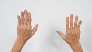 Garlic Extracts have Beneficial Effects on Rheumatoid Patients